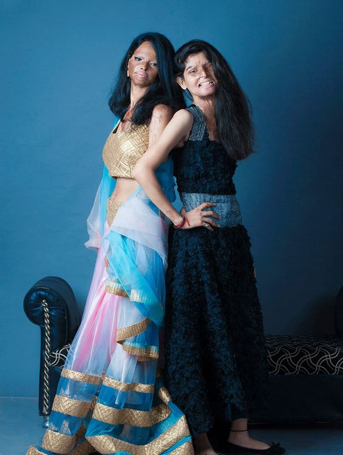 Faces of courage: Acid attack victims stand tall in photoshoot