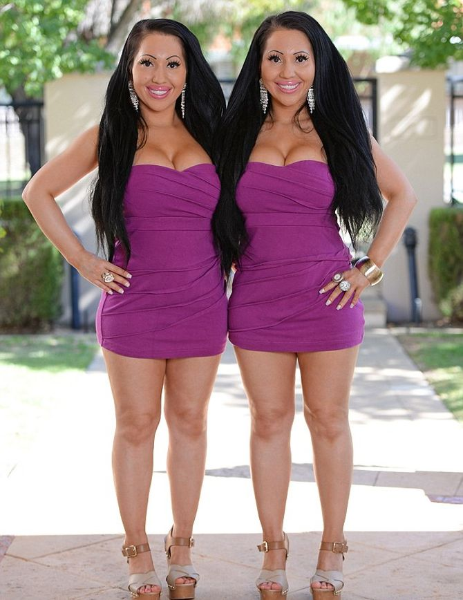Twin sisters, who spent lakhs, to look more similar share everything... even a boyfriend
