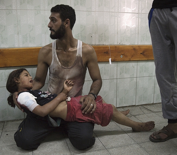 A Palestinian man holds a girl, whom medics said was injured in an Israeli shelling at a UN-run school sheltering Palestinian refugees, at a hospital in the northern Gaza Strip