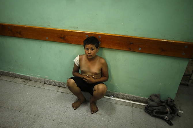 A Palestinian boy injured in the shelling sits in a hospital in Gaza