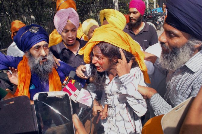 A woman shows her injury to the media after a clash between SGPC and members of a radical Sikh organisation on the 30th anniversary of Operation Bluestar, at Golden Temple Complex in Amritsar