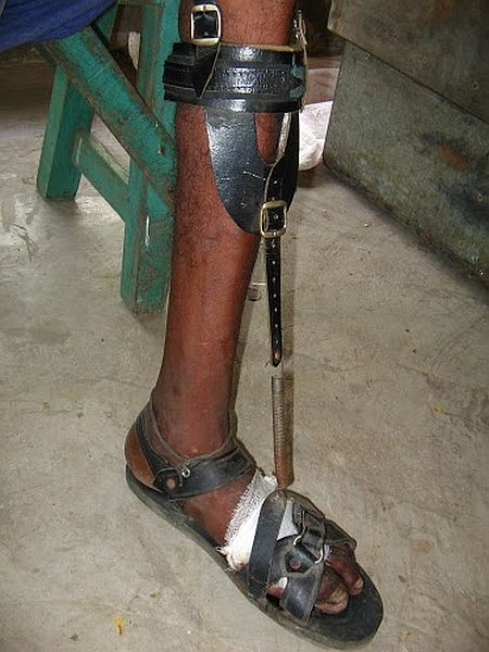 Calcutta Rescue makes shoes like this for leprosy patients