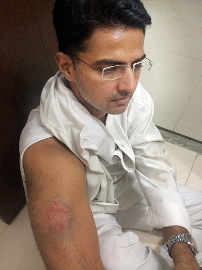 India News - Latest World & Political News - Current News Headlines in India - Sachin Pilot injured in police lathicharge