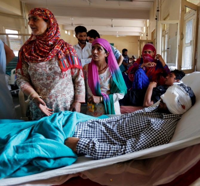 India News - Latest World & Political News - Current News Headlines in India - After the violence, Kashmir turns dark: 107 eye injuries and counting