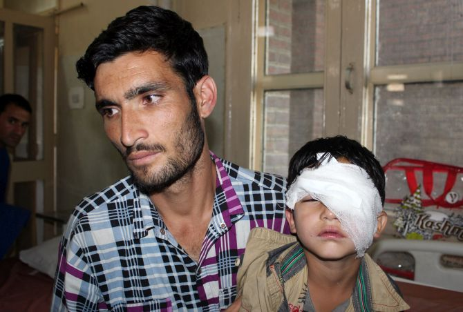 India News - Latest World & Political News - Current News Headlines in India - CRPF sorry for pellet injuries in Kashmir