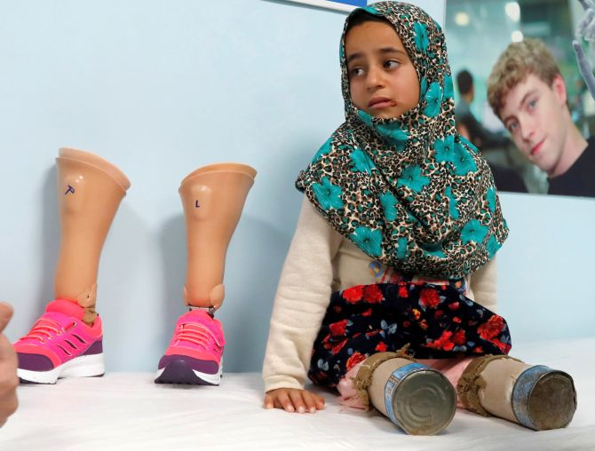 India News - Latest World & Political News - Current News Headlines in India - From tin cans to prosthetics: 8-yr-old Syrian takes her first steps