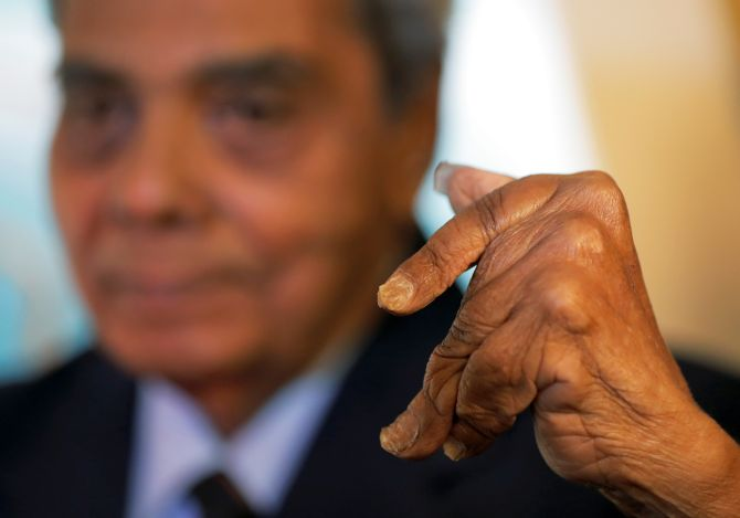 Believe it or not... Pune man finally cuts his fingernails after 66 ...