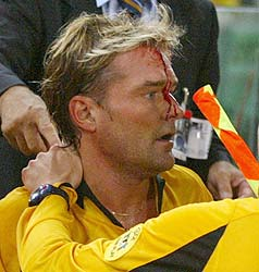 Swedish referee Anders Frisk after being struck on the head by a missile thrown by a fan