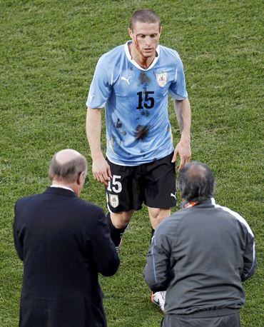 Uruguay's Diego Perez walks off the field after he was injured during a 2010 World Cup Group A soccer match against Mexico at Royal Bafokeng stadium in Rustenburg