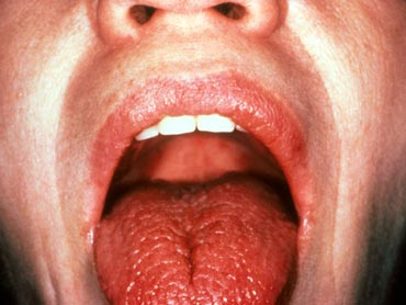 Dry mouth is one of the symptoms of Sjogren's Syndrome