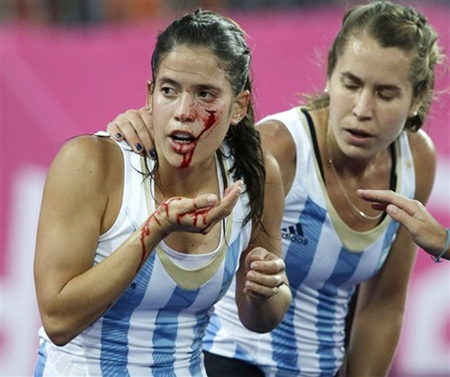 Photos: Braving pain for Olympic glory