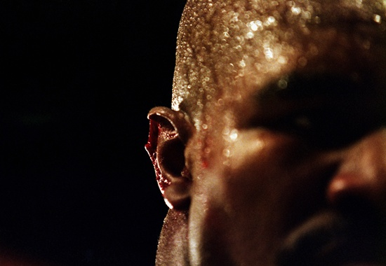 A close-up of the injury to the right ear of Evander Holyfield