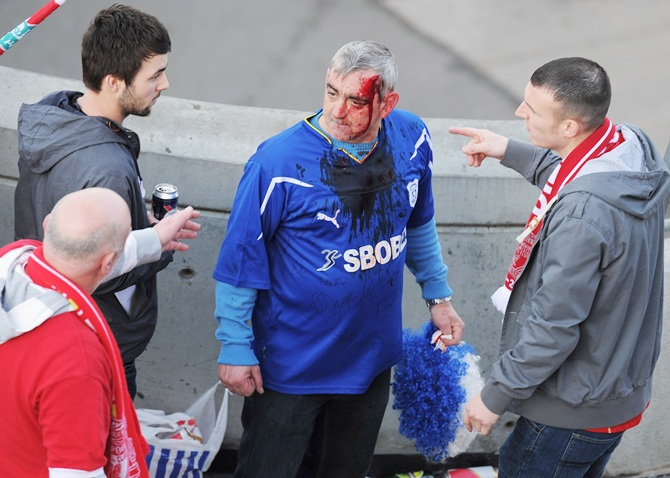 A bloodied Cardiff City fan looks on after a clash with Liverpool fans