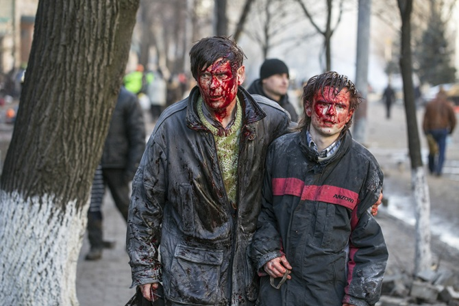 Wounded people walk after clashes with riot police in central Kiev.