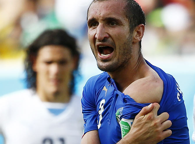 Italy's Giorgio Chiellini shows his shoulder, claiming he was bitten by Uruguay's Luis Suarez during their match