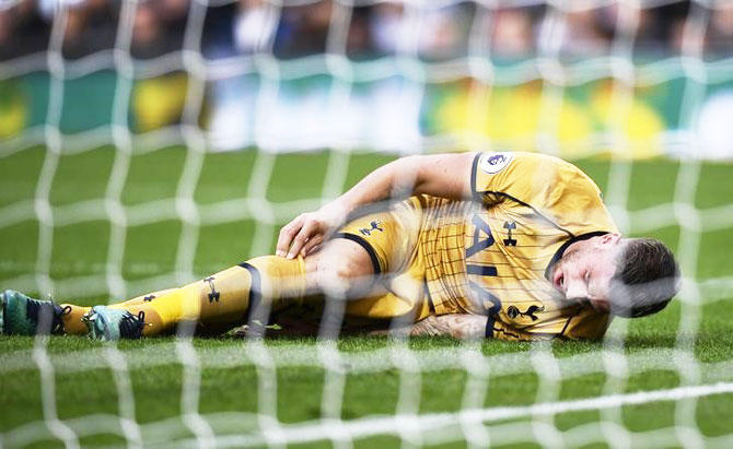 Tottenham's Toby Alderweireld is down after sustaining a injury