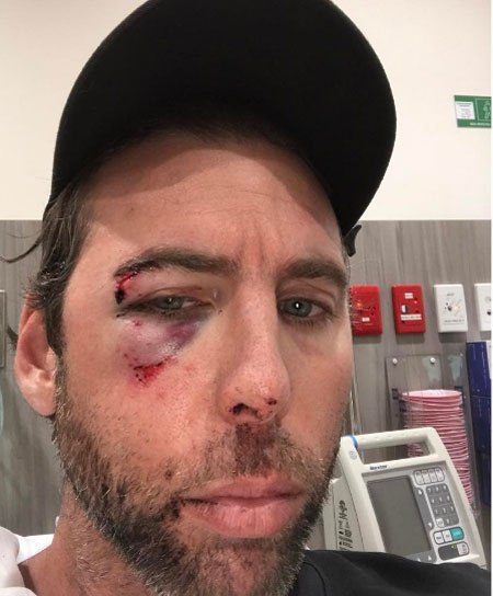 Grant Hackett beaten and bruised