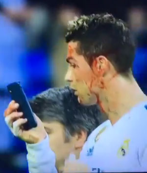 Cristiano Ronaldo checks his bloodied face in the phone cam