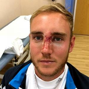England name injured Broad in squad for fifth India Test