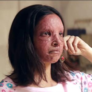 Chhapaak Trailer: Deepika's screams are spine-chilling