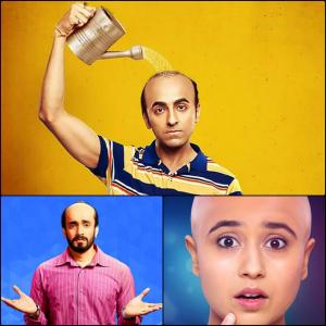 Bollywood's BALD and BEAUTIFUL