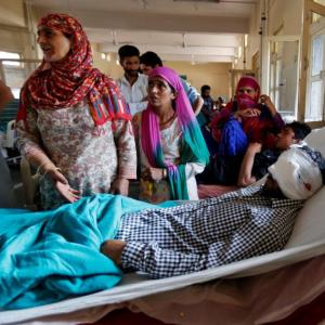 After the violence, Kashmir turns dark: 107 eye injuries and counting
