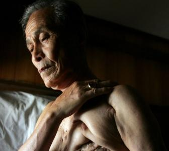 This 86-yr-old lives with the scars of a nuclear war