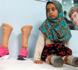 From tin cans to prosthetics: 8-yr-old Syrian takes her first steps