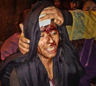 'Brutally beaten up by people wearing masks'