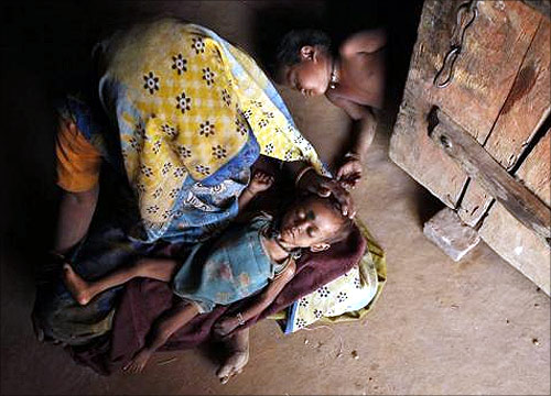 Rinku, 20 months, who weighs 4 kg and suffers from severe malnutrition, lies in his mother's lap in Naingarh village of Sheopur district in Madhya Pradesh.