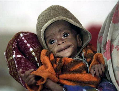Four-month-old Vishakha, who weighs 2.3 kg (5 lbs) and suffers from severe malnutrition, is carried at the Nutritional Rehabilitation Centre of Shivpuri district in Madhya Pradesh.