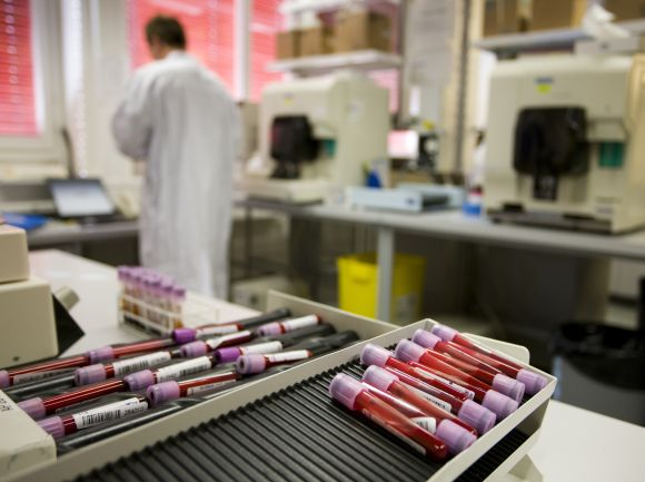 Blood samples are pictured at a laboratory for Doping Analysis