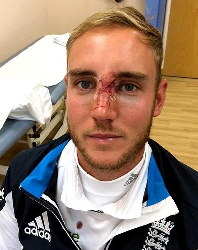 Stuart Broad shows his broken nose