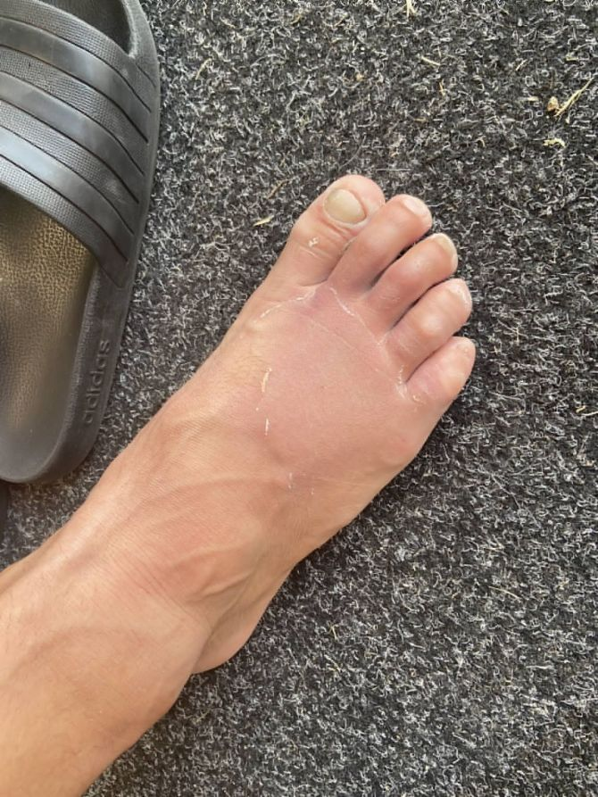 The Black Caps put out this picture of Neil Wagner's broken toes on their Twitter handle.