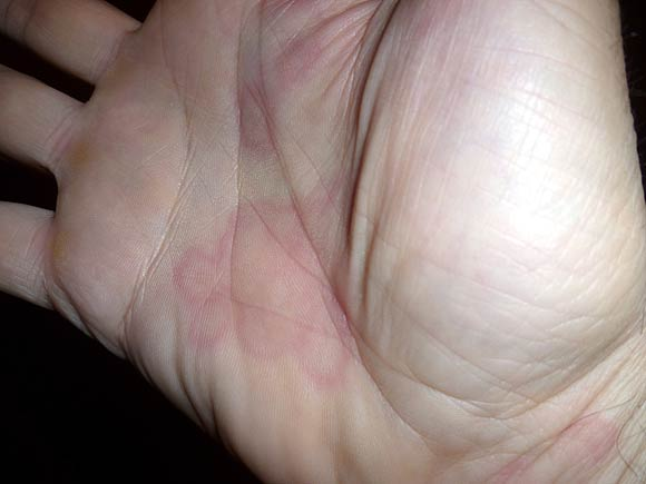 Urticaria is a skin rash caused by viral allergies