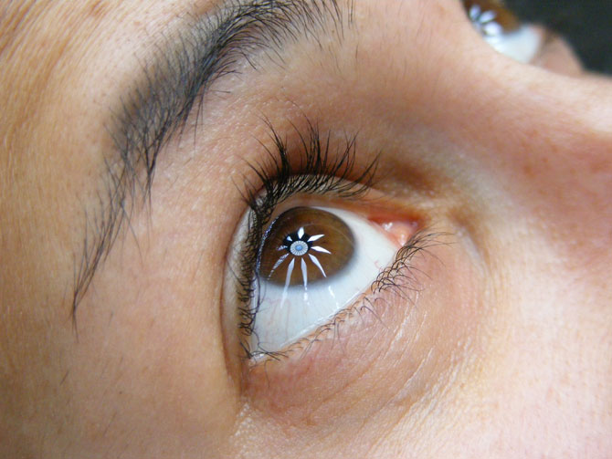 What is dry eye syndrome? Do you have it?