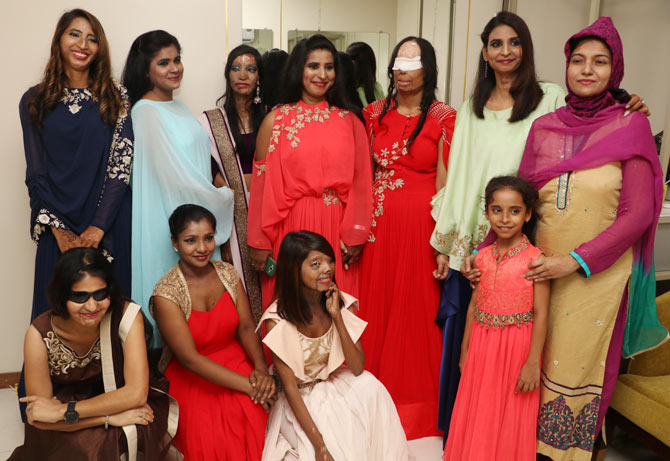 Acid Survivors Saahas Foundation fundraiser show