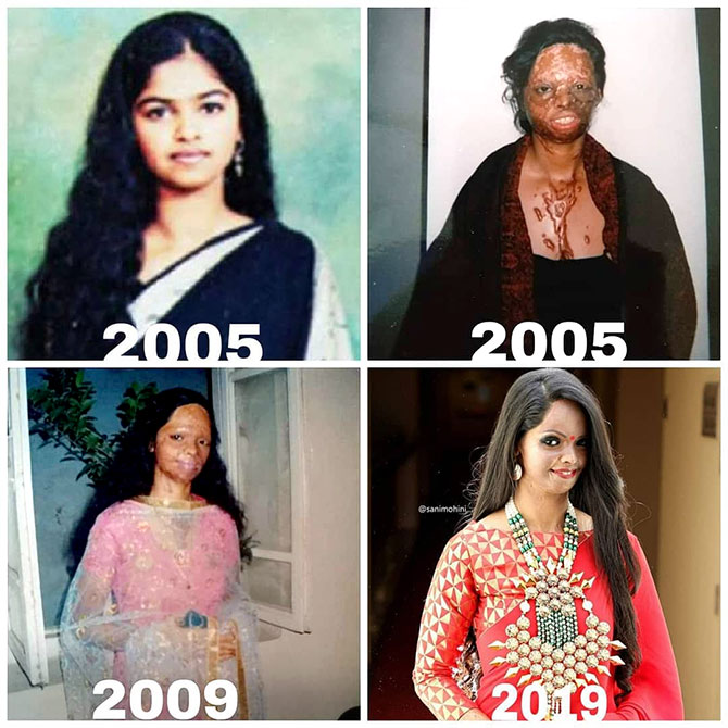 Laxmi Agarwal's journey after the attack
