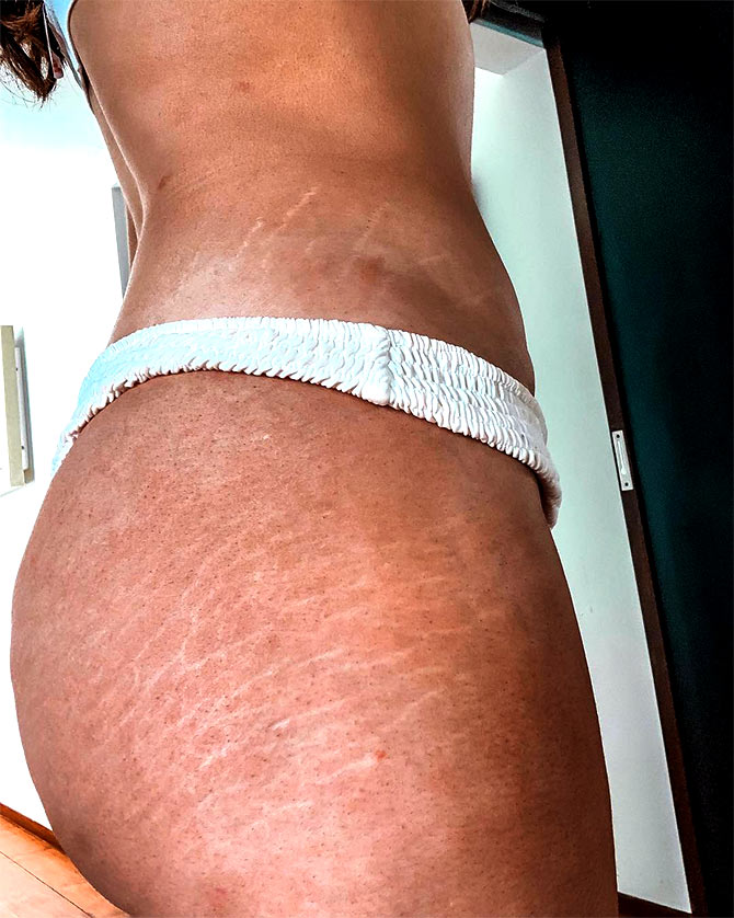 Rozanna Purcell flaunts her stretch marks