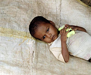 A two-year-old child suffering from grade-four malnutrition rests outside his hut in Kelghar village, about 150 km northeast from Mumbai