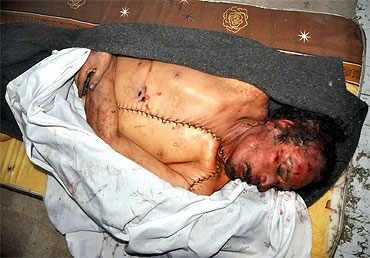 The body of slain Libyan leader Muammar Gaddafi is seen inside a storage freezer post autopsy in Misrata