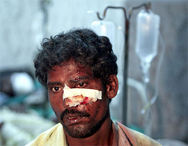An injured passenger receives treatment at a hospital after a train collision in Chennai