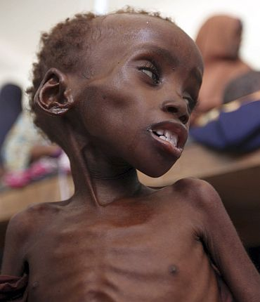 A malnourished child is seen inside a ward at Banadir hospital in Somalia's capital Mogadishu