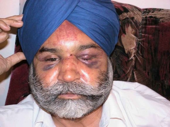 Rajinder Singh Khalsa after the attack