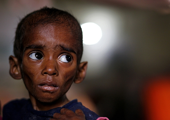 Ranbir, twenty-six-months, who weighs 5 kg and suffers from severe malnutrition, waits for food at the Nutritional Rehabilitation Centre of Shivpuri district in Madhya Pradesh