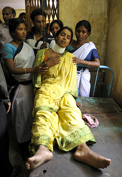 Serina Bibi was injured in a bomb blast recuperates in a local hospital at Domkol in Berhampore