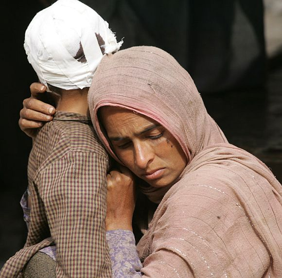 A Kashmiri woman holds her injured child outside a hospital in Karnah near the LOC