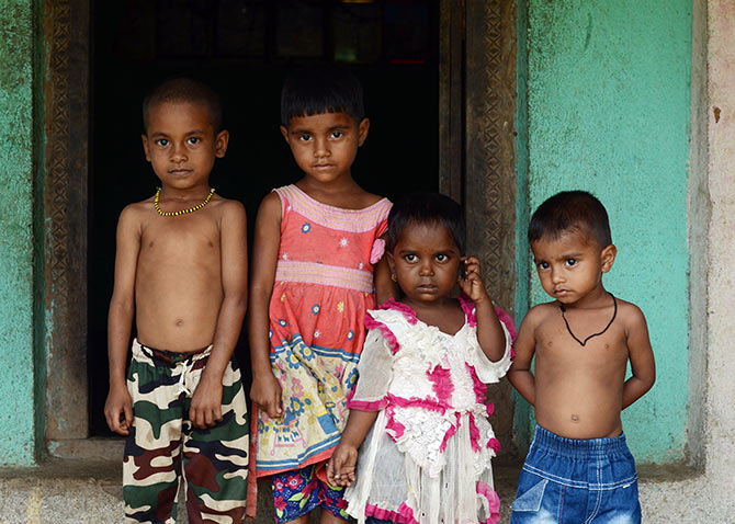 Modi must worry about India's malnutrition crisis