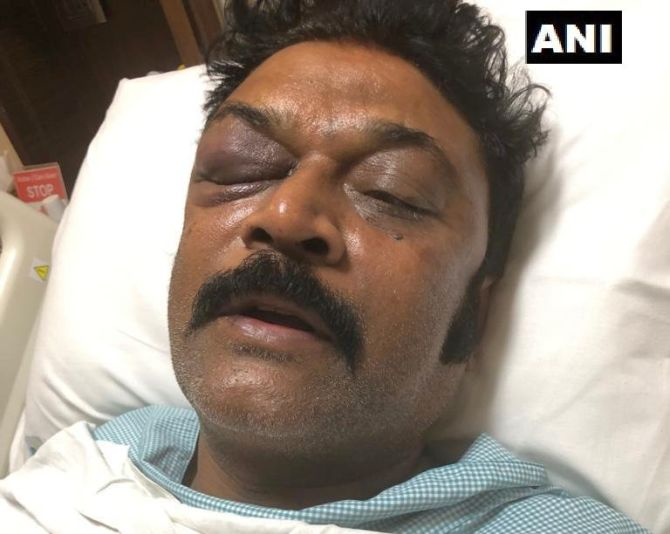 India News - Latest World & Political News - Current News Headlines in India - Karnataka Congress MLA files assault complaint against colleague